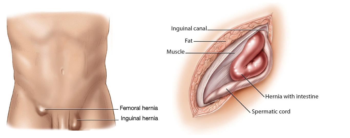 Inguinal Hernia: Diagnosis & Treatment | Scottish Hernia Centre